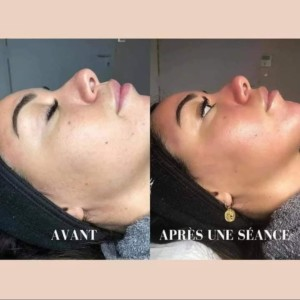 soin visage hydra face micro dermabrasion